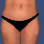 liposuction-marbella-after