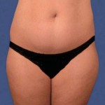 liposuction-marbella-before