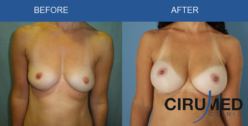 breast-augmentation-implants-fat-supercharged