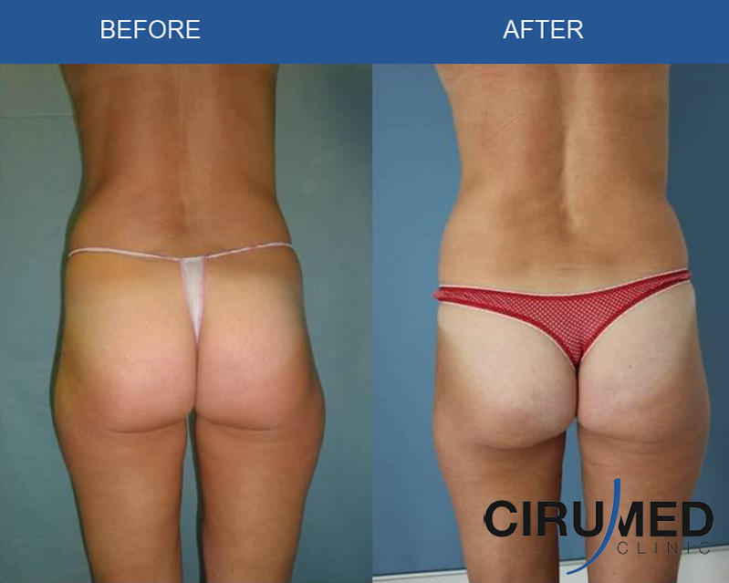 liposuction-fat-transfer-breast-augmentation