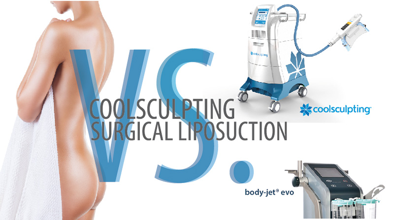 coolsculpting-or-liposuction