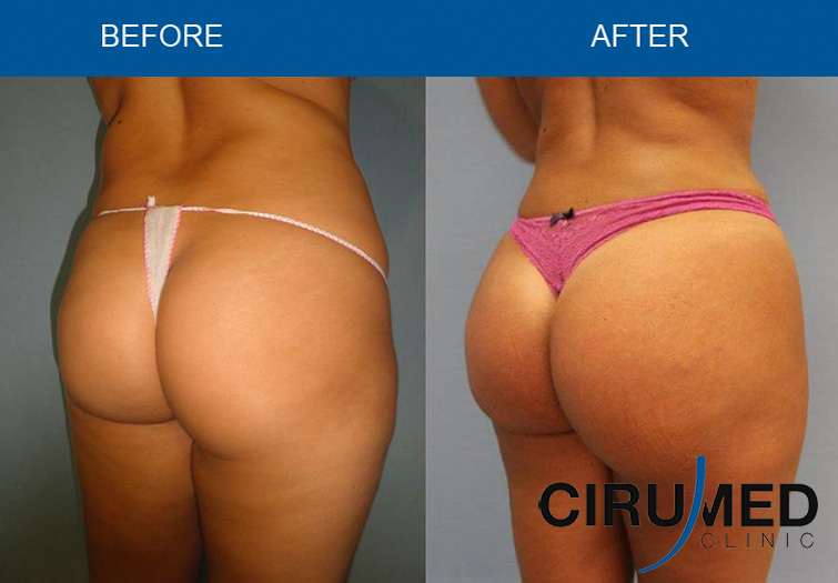 Brazilian Butt Lift Before And After Pictures 64