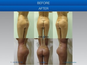 Buttock augmentation spain-aumento de gluteos malaga