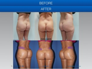 UK specialists buttock augmentation