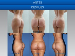 Supercharged buttock implants Spain